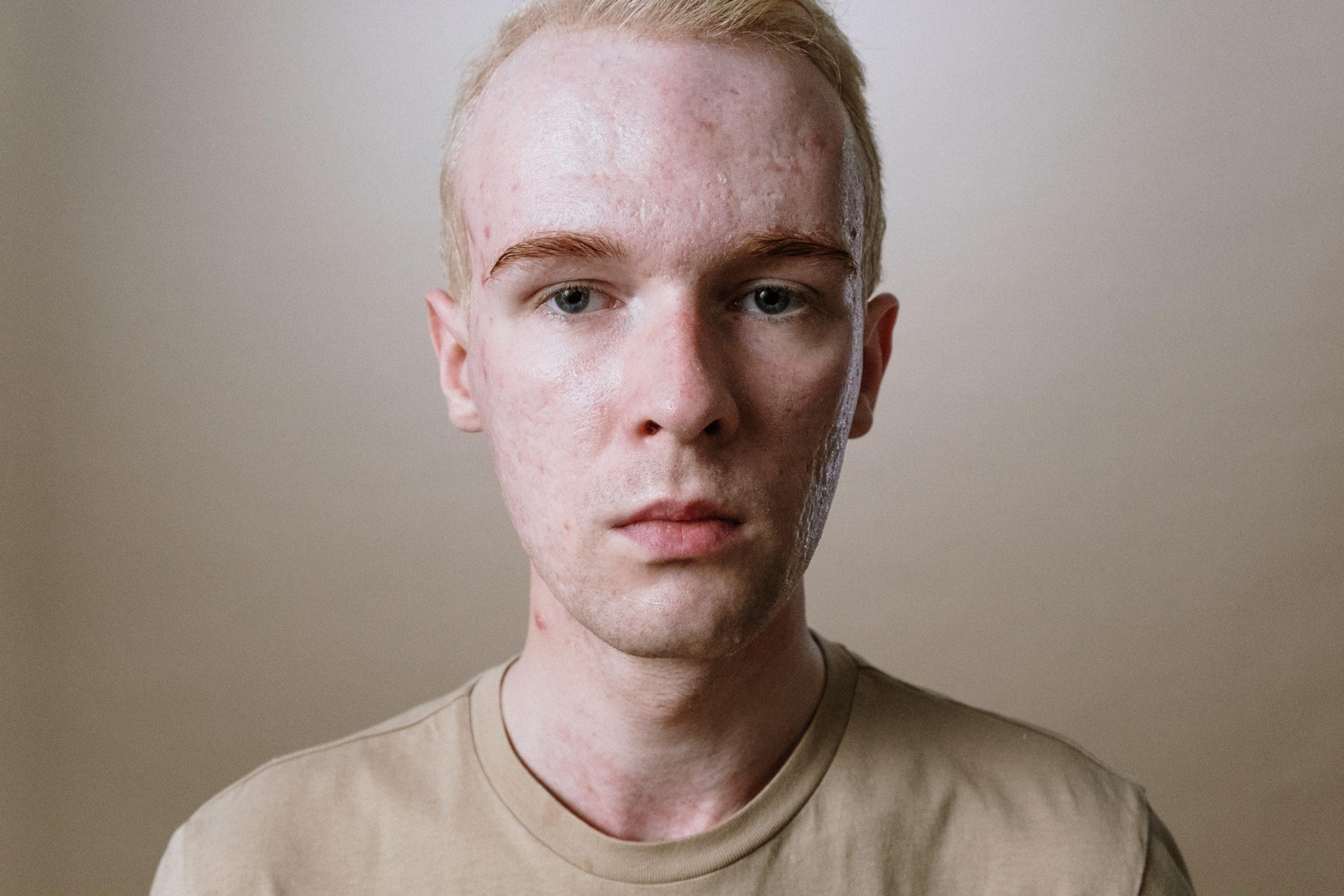 Acne Scars vs. Hyperpigmentation